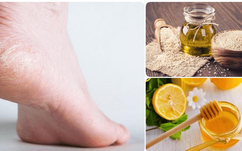 Trị nứt gót chân bằng bột gạo, mật ong và giấm