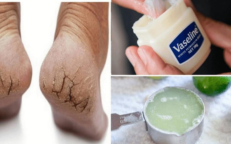 Trị nứt gót chân bằng Vaseline kết hợp với nước chanh